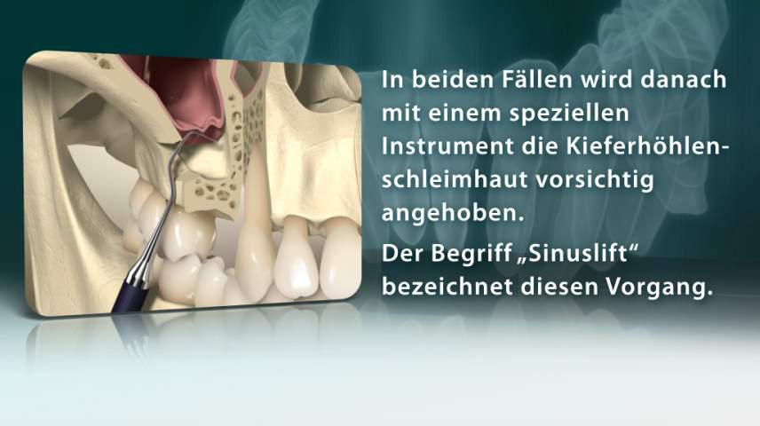 Erklärfilm für Patienten | 009 Sinuslift