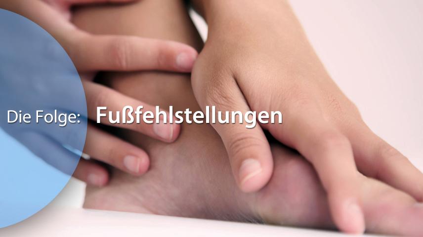 Erklärfilm für Patienten | 138 Hallux Valgus