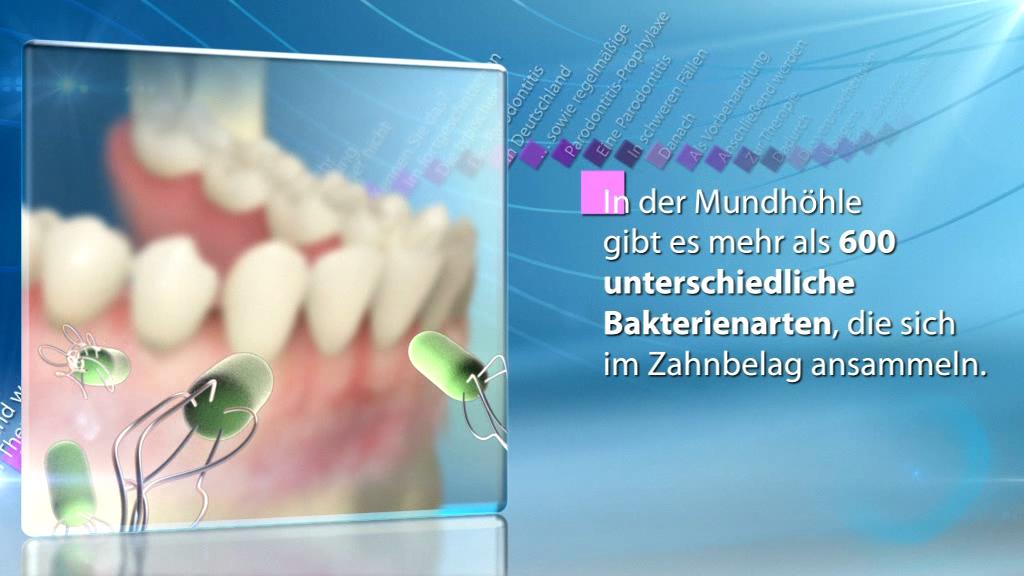 Erklärfilm für Patienten | Zahnbelag