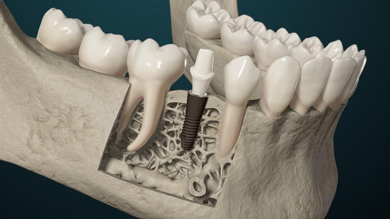 3D-Animationsfilm | Implantat