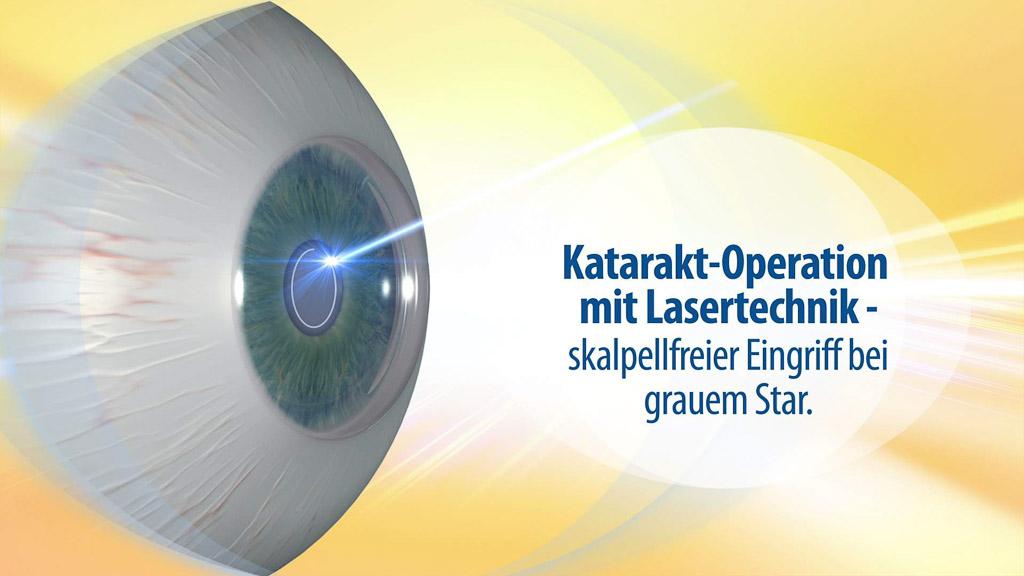 Katarakt Operations-Laser