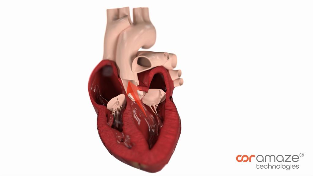 Herzkammern