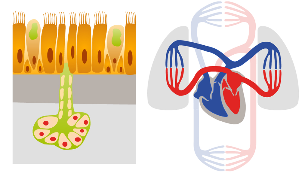Medizinische 2D-Animationen | E-Learning + WBT