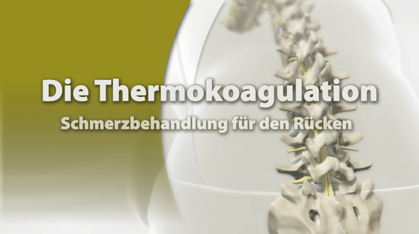 Erklärfilm für Patienten | 003 Thermokoagulation