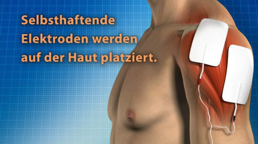 Erklärfilm für Patienten   97 Elektroden