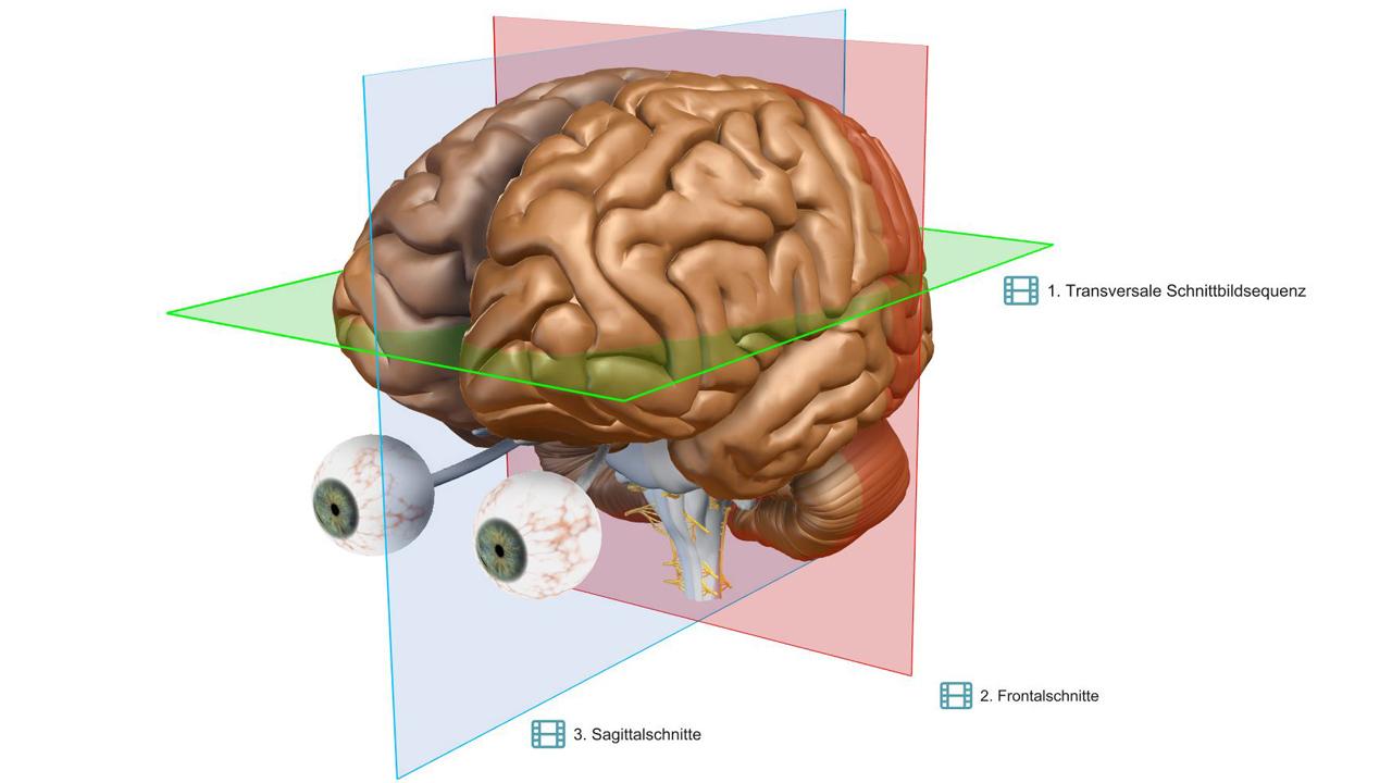 VR-Gehirn   Schnittebenen